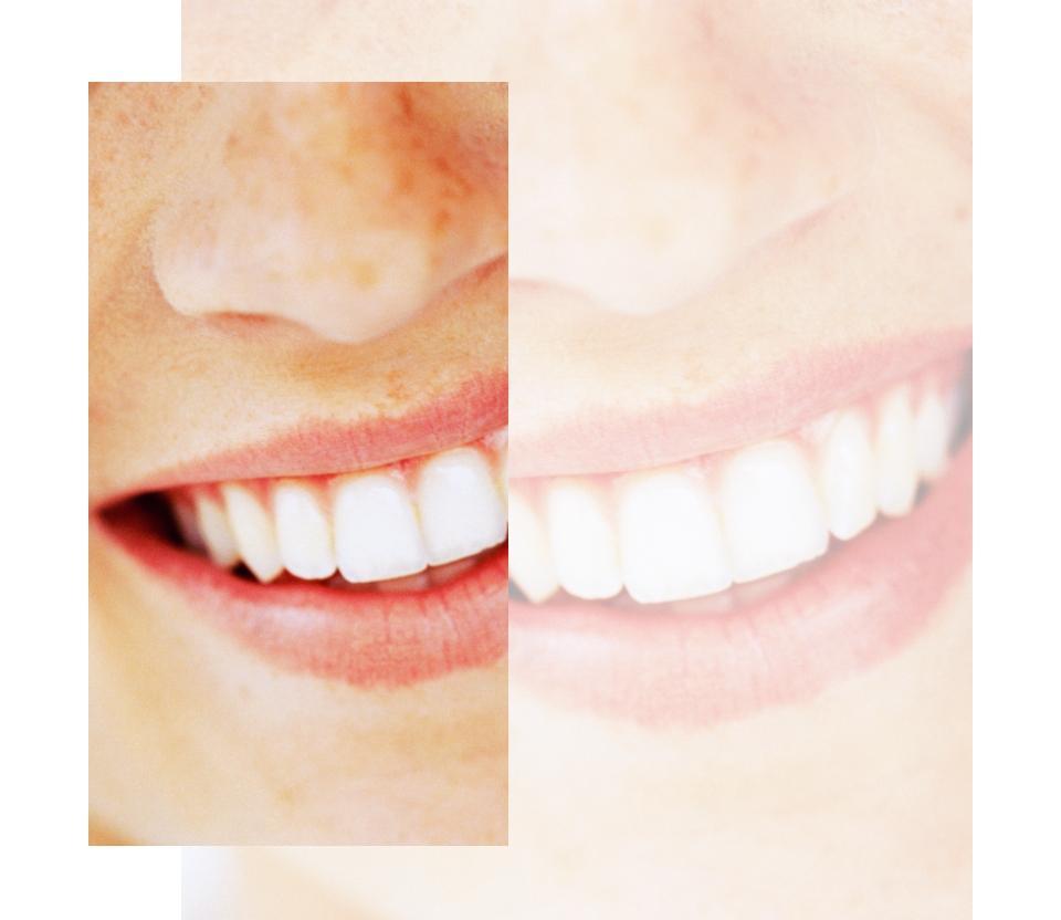 piękne białe zęby